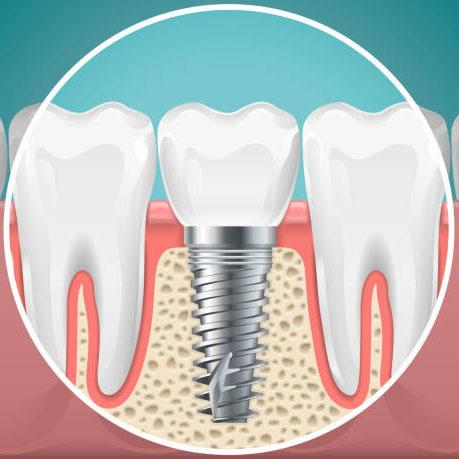 ایمپلنت دندان و طول عمر آن