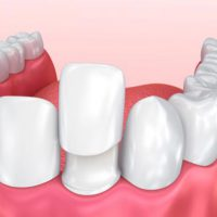 کامپوزیت , لمینیت دندان
