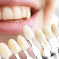 دکتر مجید رحمانی-ایمپلنت , کامپوزیت , لمینیت دندان